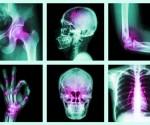 Brain Injury Case Results